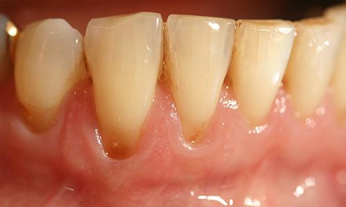 Zahnfleischaufbau vorher