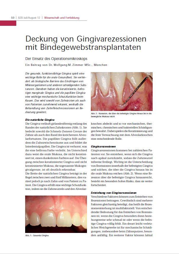 Der Münchner Parodontologe Dr. Wolfgang M. Zimmer setzt das Operationsmikroskop zur Deckung von Gingivarezessionen mit Bindegewebstranplantaten ein.