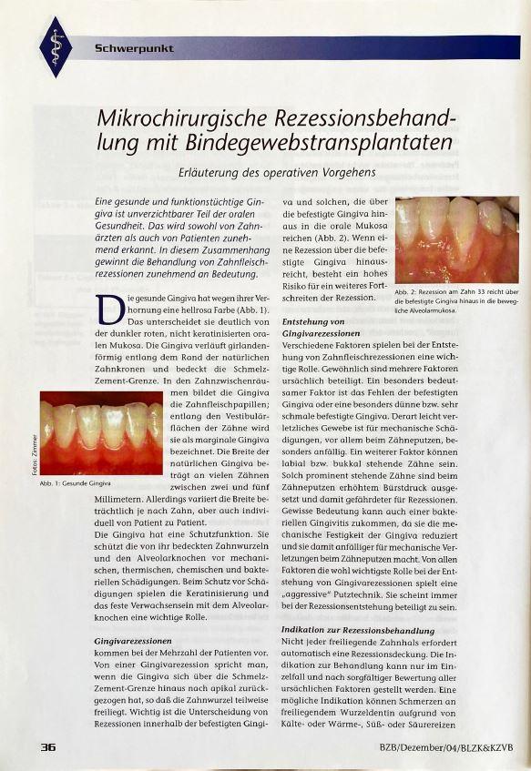 Erläuterung des operativen Vorgehens bei der mikrochirurgischen Rezessionsbehandlung mit Bindegewebstransplantaten.